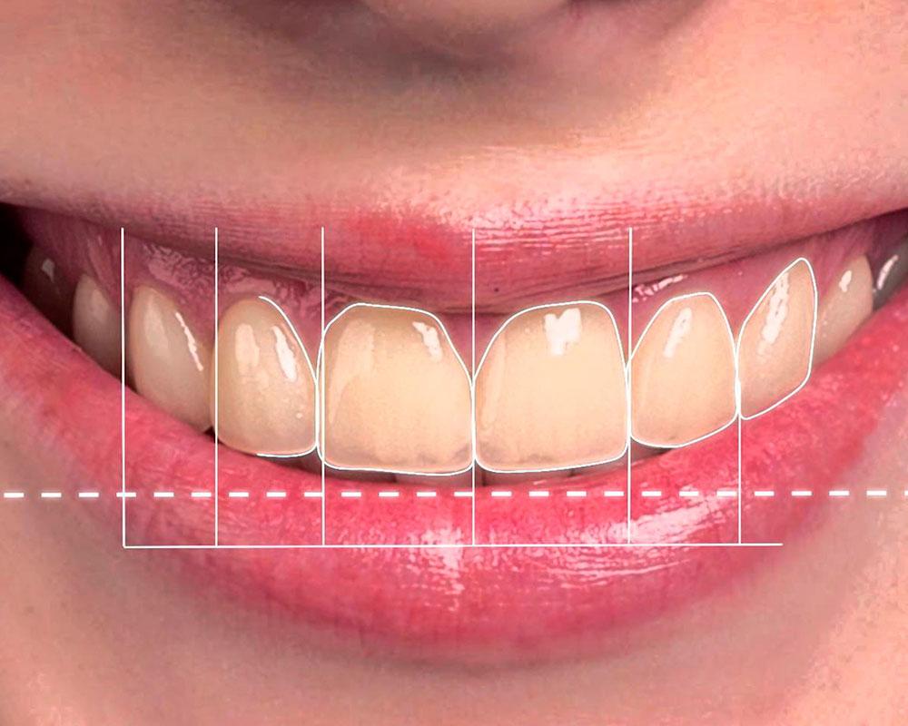 Digital-Smile-Design-boca-a-boca-dental.jpg