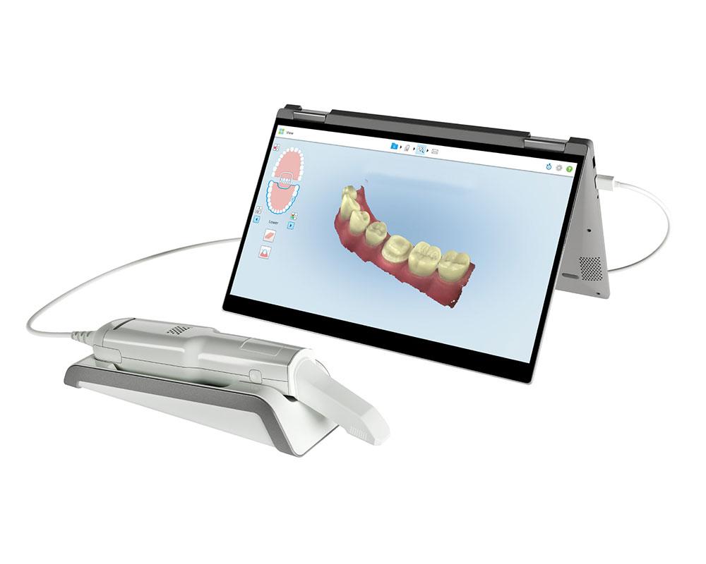 itero-element-boca-a-boca-dental.jpg