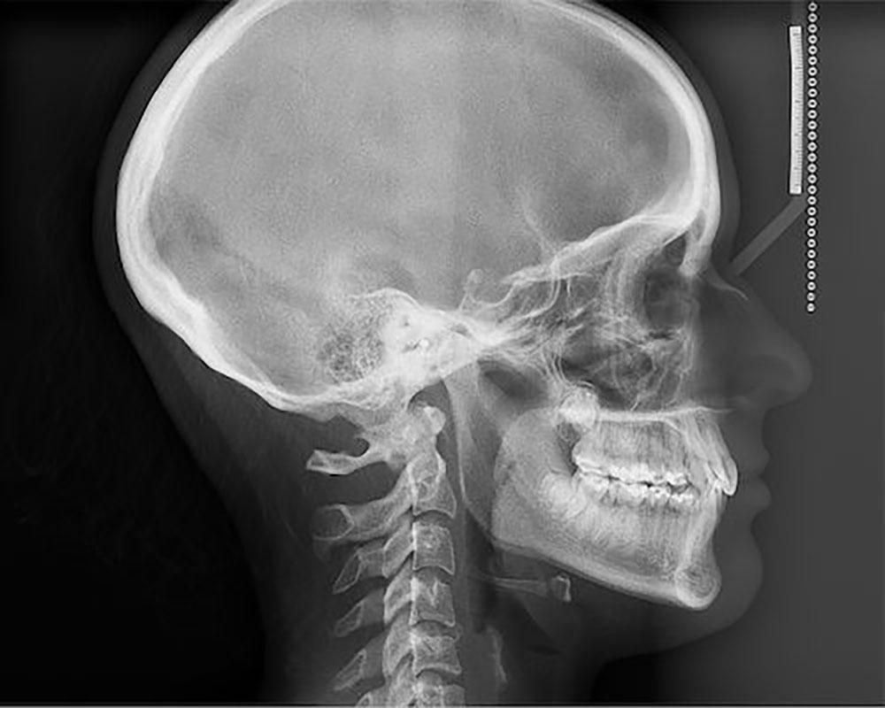 teleradiografia-boca-a-boca-dental.jpg